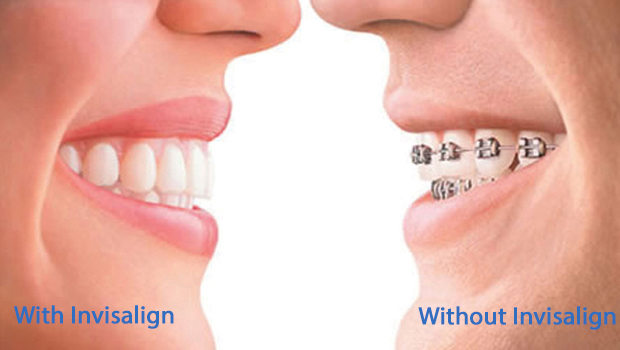 Invisalign in South Bound Brook